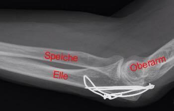 Röntgenbild_ellbogen