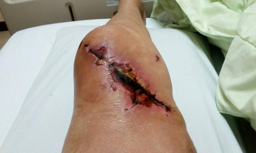 Petras Knie 9 Tage nach der Operation, beim Verbandwechsel